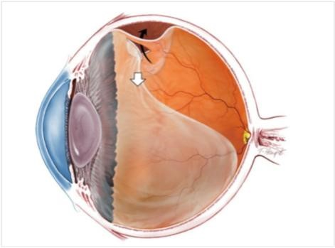 Do you have a vitreous detachment?