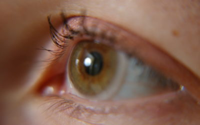 Key things you should know about contact lenses