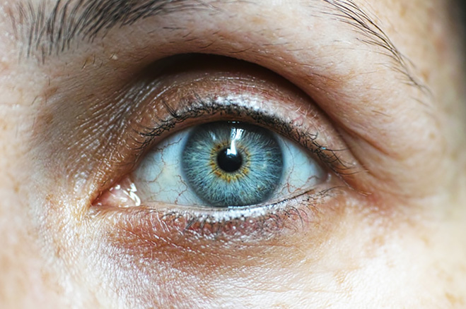 The Connection Between Diabetes and Vision Loss