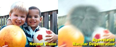 Keeping up to date with age-related macular degeneration